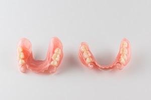 ワイヤーなしの入れ歯